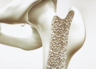 La importancia del tratamiento de la osteoporosis