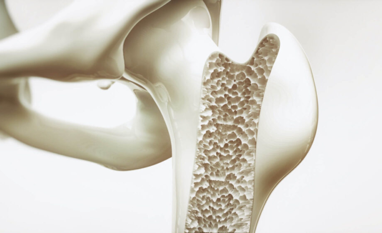 la-importancia-del-tratamiento-de-la-osteoporosis